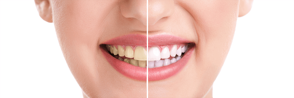Teeth Whitening in Gulfport
